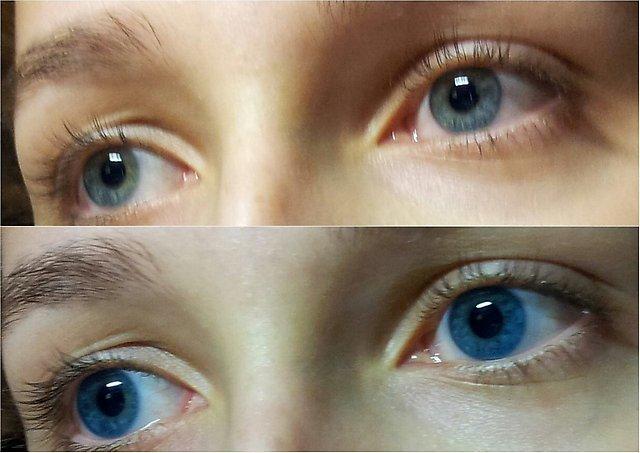 линзы ультрафлекс фото они представляют собой